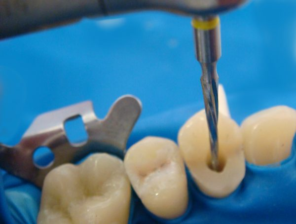 Как можно спасти сильно разрушенный зуб