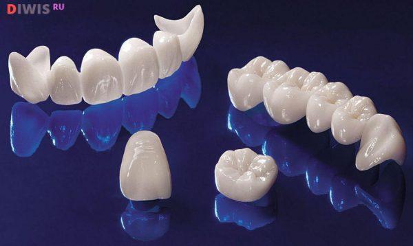 Почему выбирают протезирование зубов на имплантах