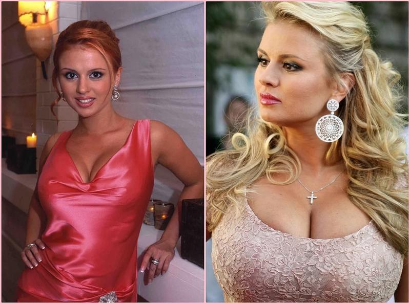 Анна Семенович фото до и после пластики