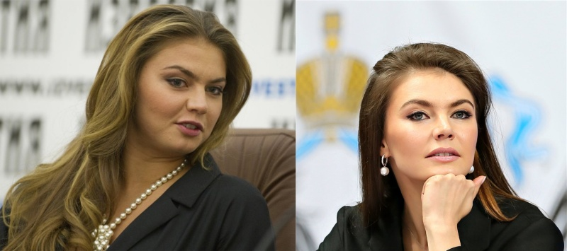 Фото Алины Кабаевой до и после пластики