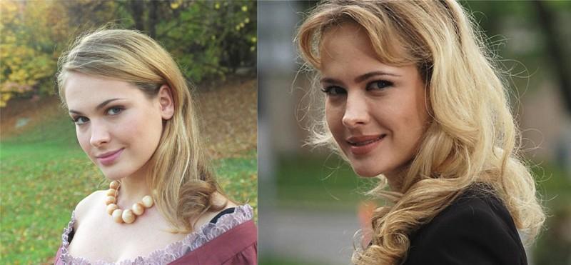 Фото Анны Горшковой до и после пластики