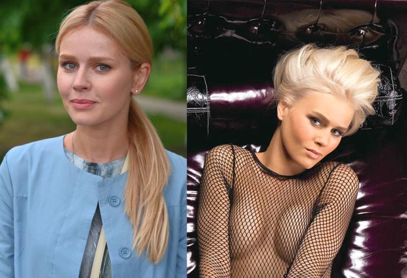 Фото Екатерины Кузнецовой до и после пластики