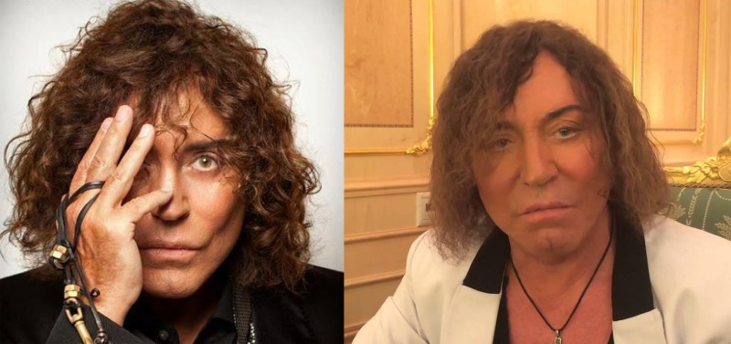 Фото Валерия Леонтьева до и после пластики