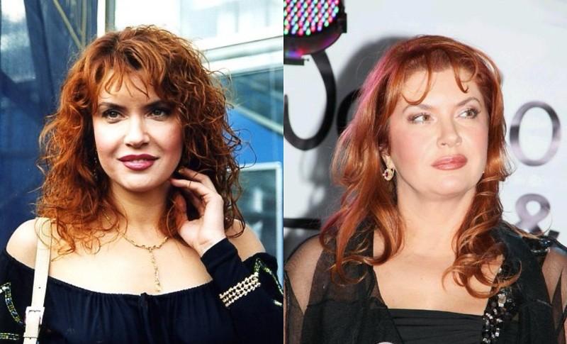 Фото Веры Сотниковой до и после пластики
