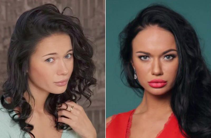 Яна Кошкина до и после пластики фото
